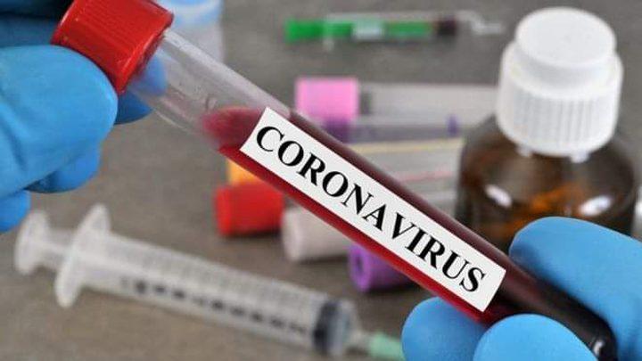 5 حالات وفاة و 470 اصابة جديدة بكورونا خلال 24 ساعة