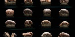 مخ بشري